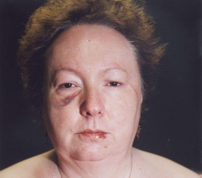 Susan Kuhnhausen Killed the Hitman Sent to Kill Her